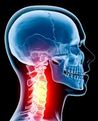 Neck Pain and AAI