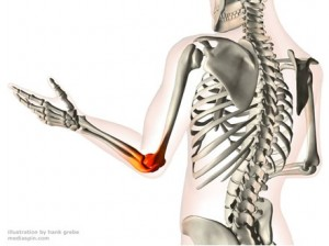 Options for joint pain relief